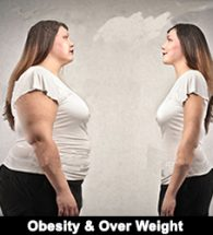 Obesity ,over weight